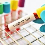 Tests van het coronavirus in allerlei felle kleurtjes